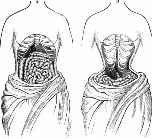 A força de um espartilho apertado criaria uma pressão não só sobre os pulmões, mas sobre os órgãos internos que mudariam de posição para acomodar o novo esqueleto. Ilustração de 1884.
