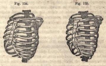 Um desenho feito por Comstock mostra um esqueleto normal e um esqueleto deformado pelo corpete.
