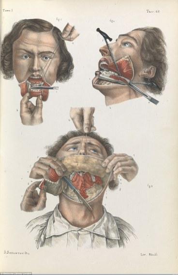 cirurgia (2)