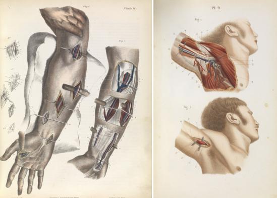 A ilustração à esquerda é de 1866 e mostra cirurgiões amarrando artérias na parte inferior do braço e do cotovelo para parar o fluxo de sangue. A ilustração á direita é de 1848 e mostra a anatomia da axila, com a artéria axilar.